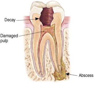 Painful tooth needs root canal dentist