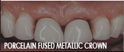 porcelain fused metallic dentist fresno ca