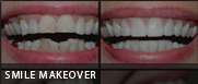 smile makeover fresno ca