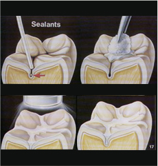 Sealants Fresno CA
