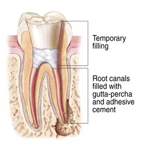 root canal therapy completed successfuly